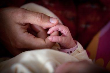 У Казахстані народилася дитина з чотирма ногами